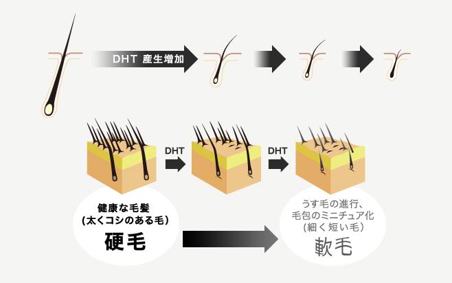 髪の毛のミニチュア化