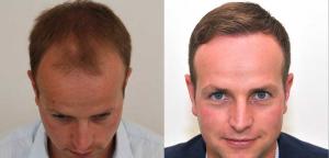 自毛植毛症例1