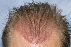 自毛植毛手術痕-移植箇所